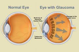 eye with glaucomaimages